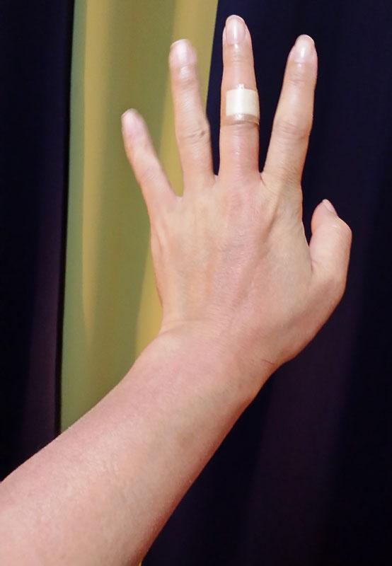 手の甲 赤い